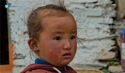 Growing Face of Upper Mustang
